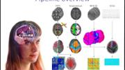 VIDEO: An automated pipeline for constructing personalized virtual brains from multimodal neuroimaging data